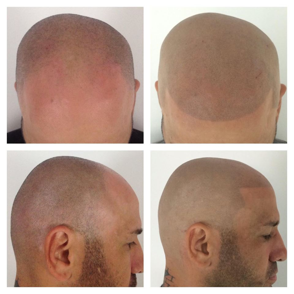 ScalpMicropigmentation Before and After